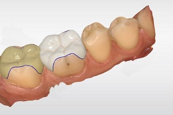 Tus dientes en una sola sesión