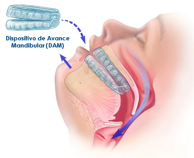 dispositivo de avance mandibular DAM madrid
