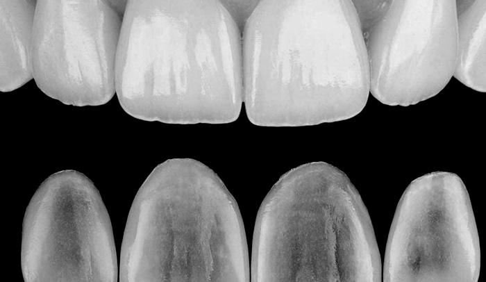 Sabemos que tu boca es parte de tu marca personal y queremos ayudarte a mejorarla