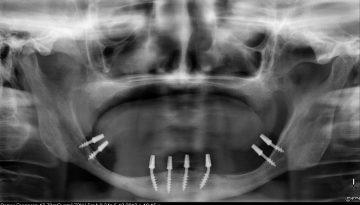 implantes con poco hueso
