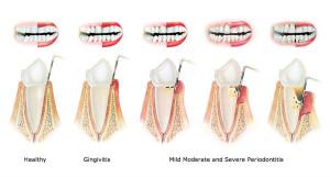 periodoncia madrid tratamiento clínica dental identa