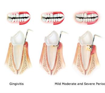 periodoncia tratamiento clínica dental identa madrid