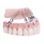 Todos tus dientes sobre 4 implantes para que puedas salir de la clínica con todos tus dientes