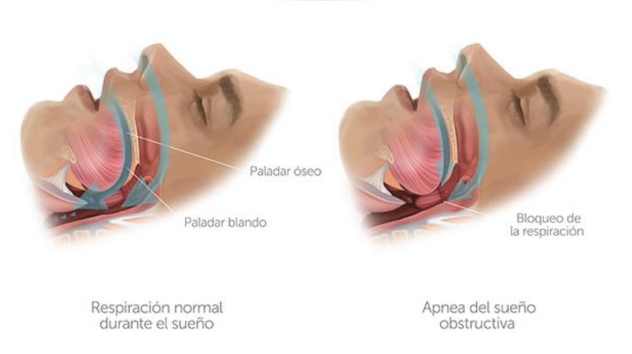 apnea del sueño madrid