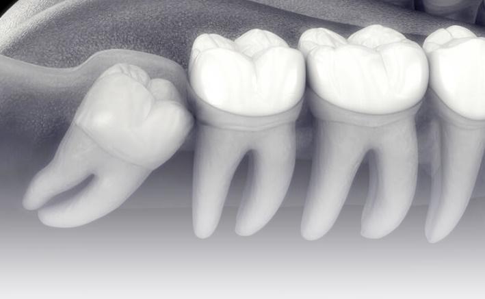 Nuestro cirujano realiza todo tipo de procedimientos quirúrgicos, desde los más sencillos a los más complejos