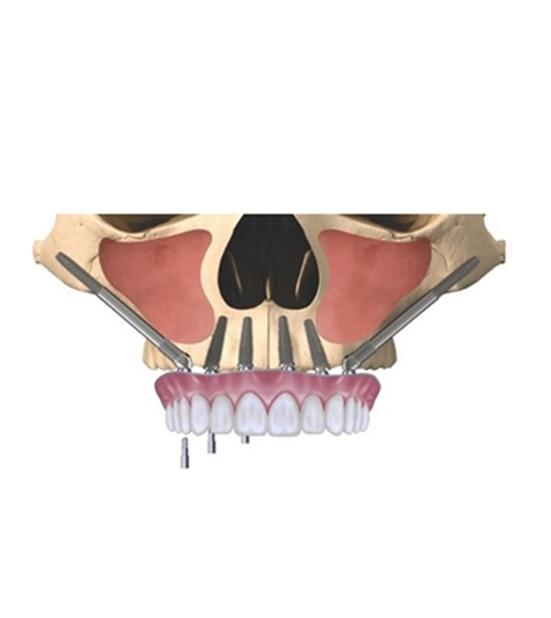 Este tipo de Implantes se colocan exclusivamente cuando hay poco hueso en el maxilar. ¿Sabías que se anclan en el hueso zigomático o malar?