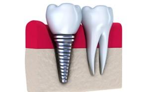Implantes dentales precio