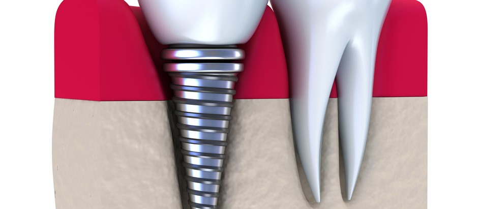 Implantes dental barato clinica dental identa