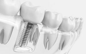 Somos especialistas en la rehabilitación mediante implantes dentales, incluso en los casos más complicados
