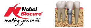 implantes madrid dentales nobel biocare clinica dental identa