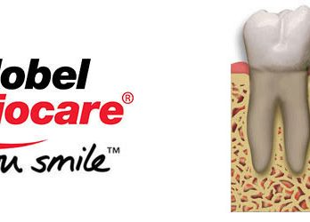 nobel biocare implantes madrid