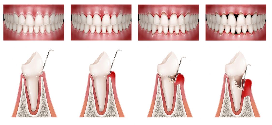 periodoncia madrid identa